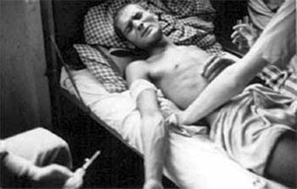 Dachau, 1944, un prigioniero rom è sottoposto a esperimenti per rendere potabile il sudore